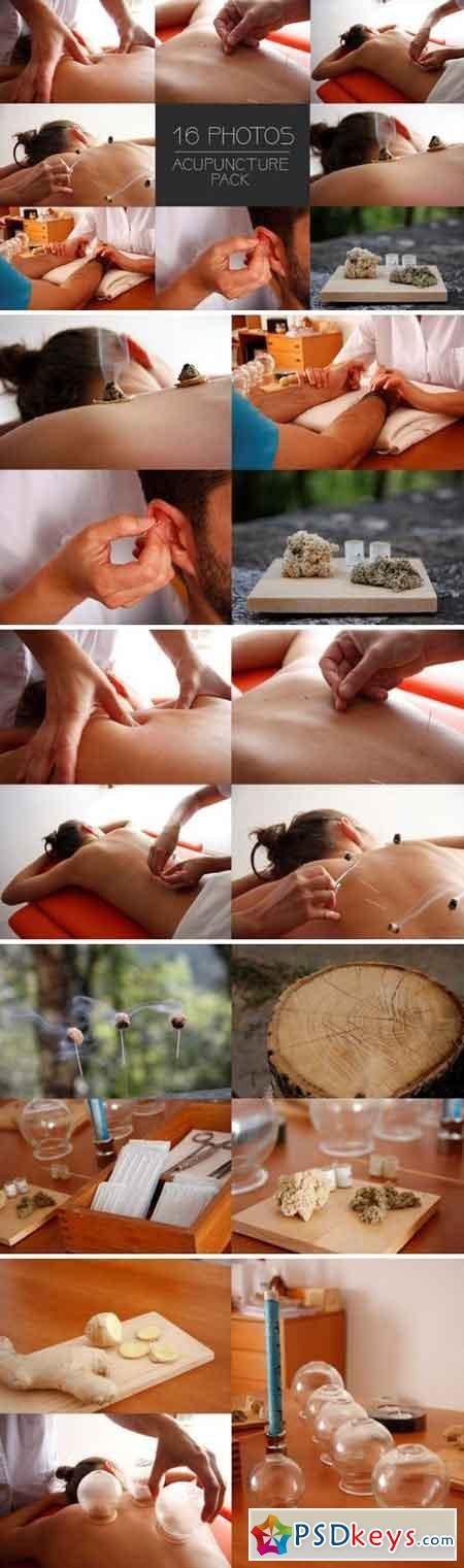 Acupuncture session x16 Pack