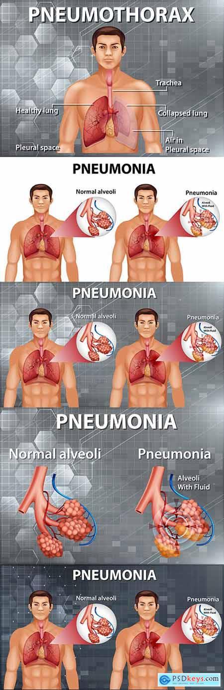 Human anatomy showing pneumonia diagram illustration